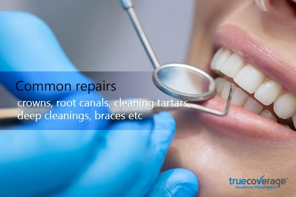 common repairs crown, root canals, cleaning tartars